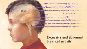 epilepsy cure